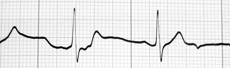 Heart Rate Zones Small